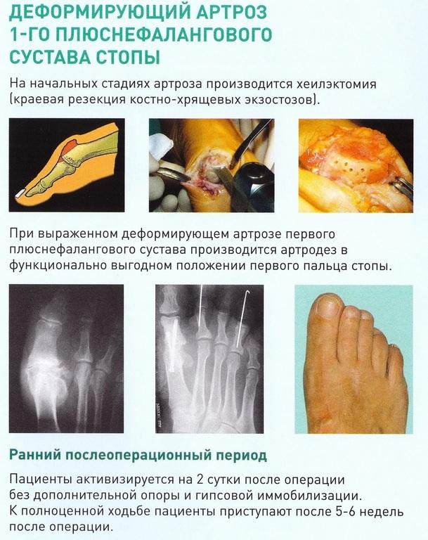 Запись на прием врачей воткинск гб 2